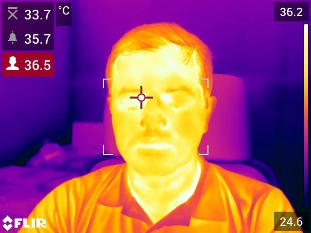 Se o canto dos olhos estiver com a temperatura acima do, a pessoa pode ser selecionada para triagem adicional